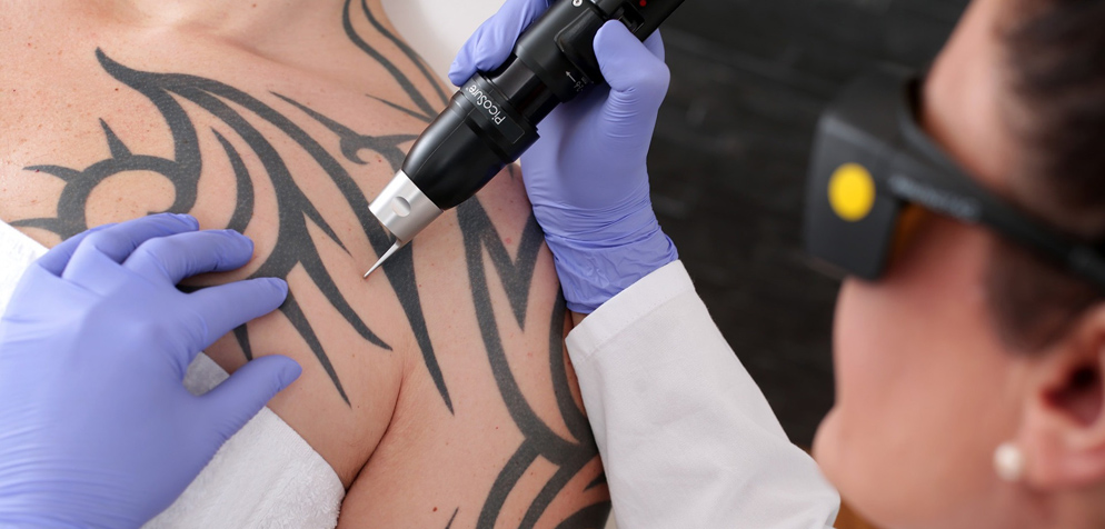 Die Tattoo Entfernung Radio Top
